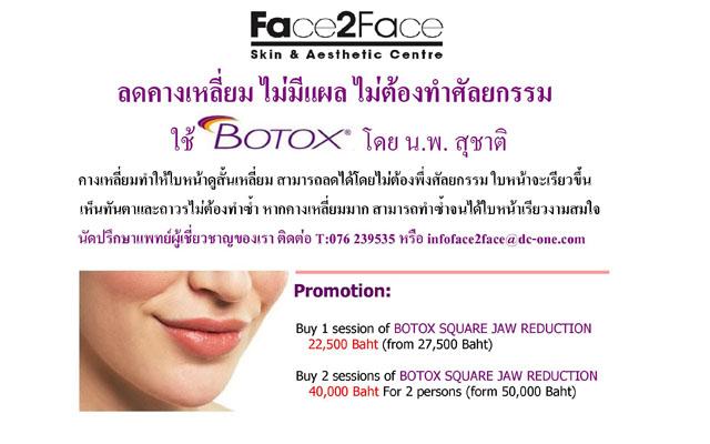 Botox ____________160612