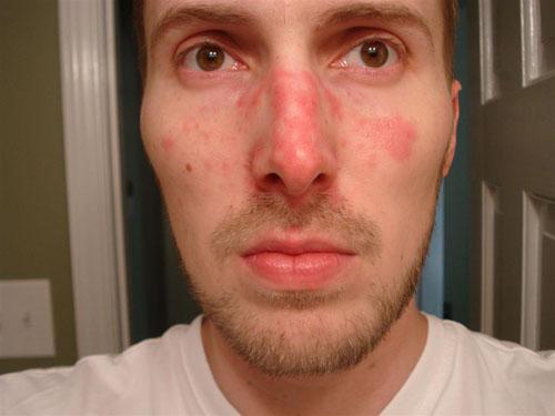 man-allergies