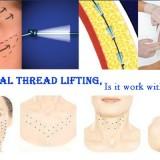 Facial Thread lifting