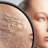 dry-skin-femalebaR4j